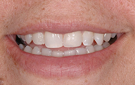Chipped tooth after repair