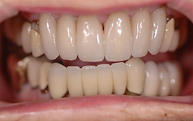 Crowns and veneers after repair
