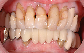Crowns and veneers before repair