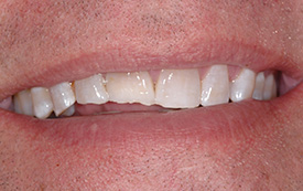 Chipped tooth before repair