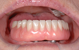 Implant supported dentures after