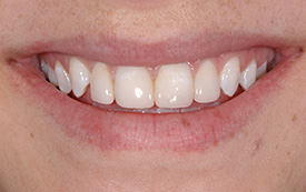 Gapped teeth after repair