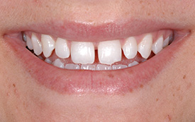 Gapped teeth before repair