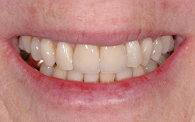 Implant crowns after repair