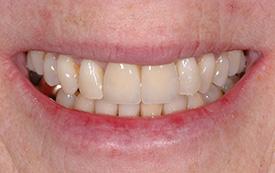 Implant crowns after repair