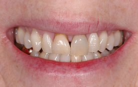 Implant crowns before repair